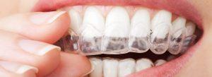 blanchiment-dentaire-eclaircissement1-2y217hi3p3s3rkwjqsj7cw